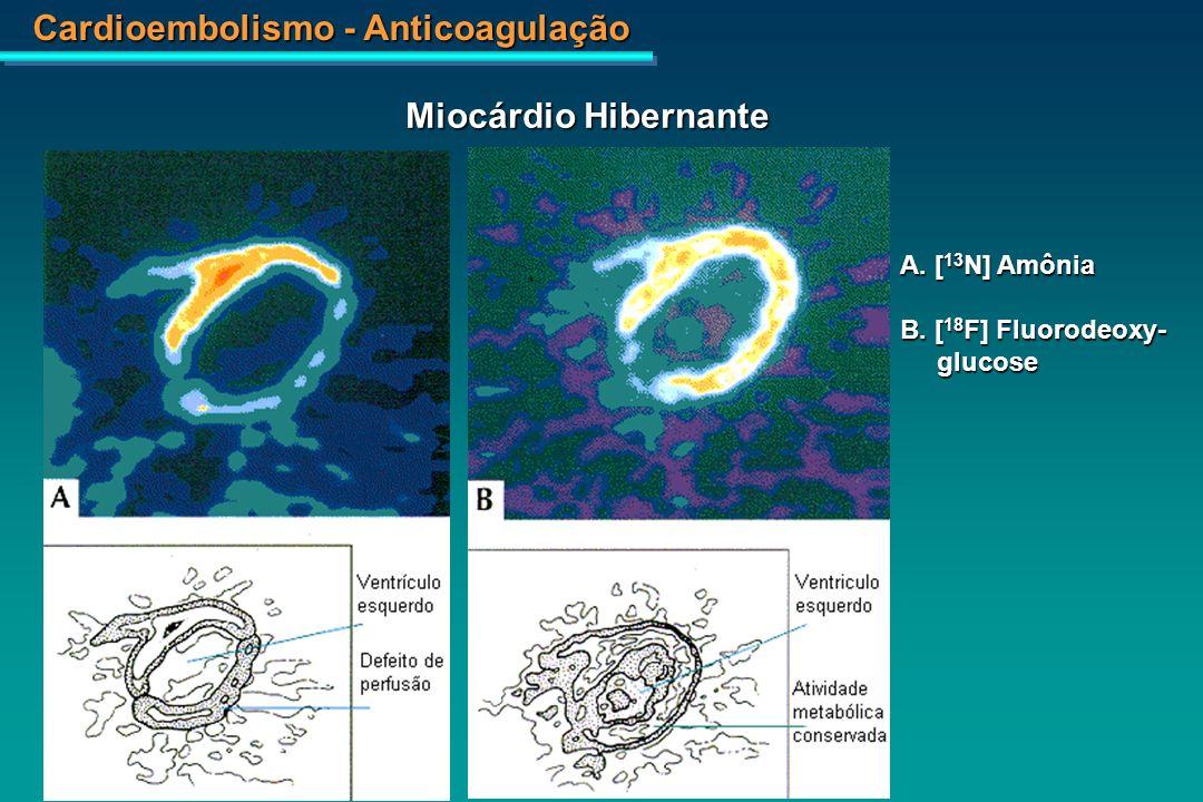 Miocárdio Hibernante A. [13N] Amônia B. [18F] Fluorodeoxy- glucose